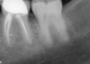 follow up of root canal treatment