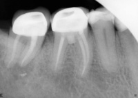 perforation repair in furcation of lower molar