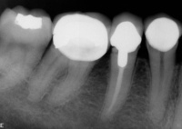 x-ray of a lower first premolar